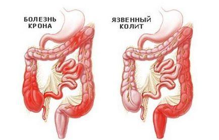 fekélyes vastagbélgyulladás kezelése férgekkel)