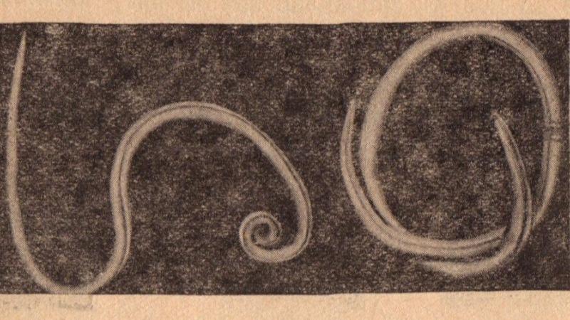 Hány pinworm féreg megy keresztül