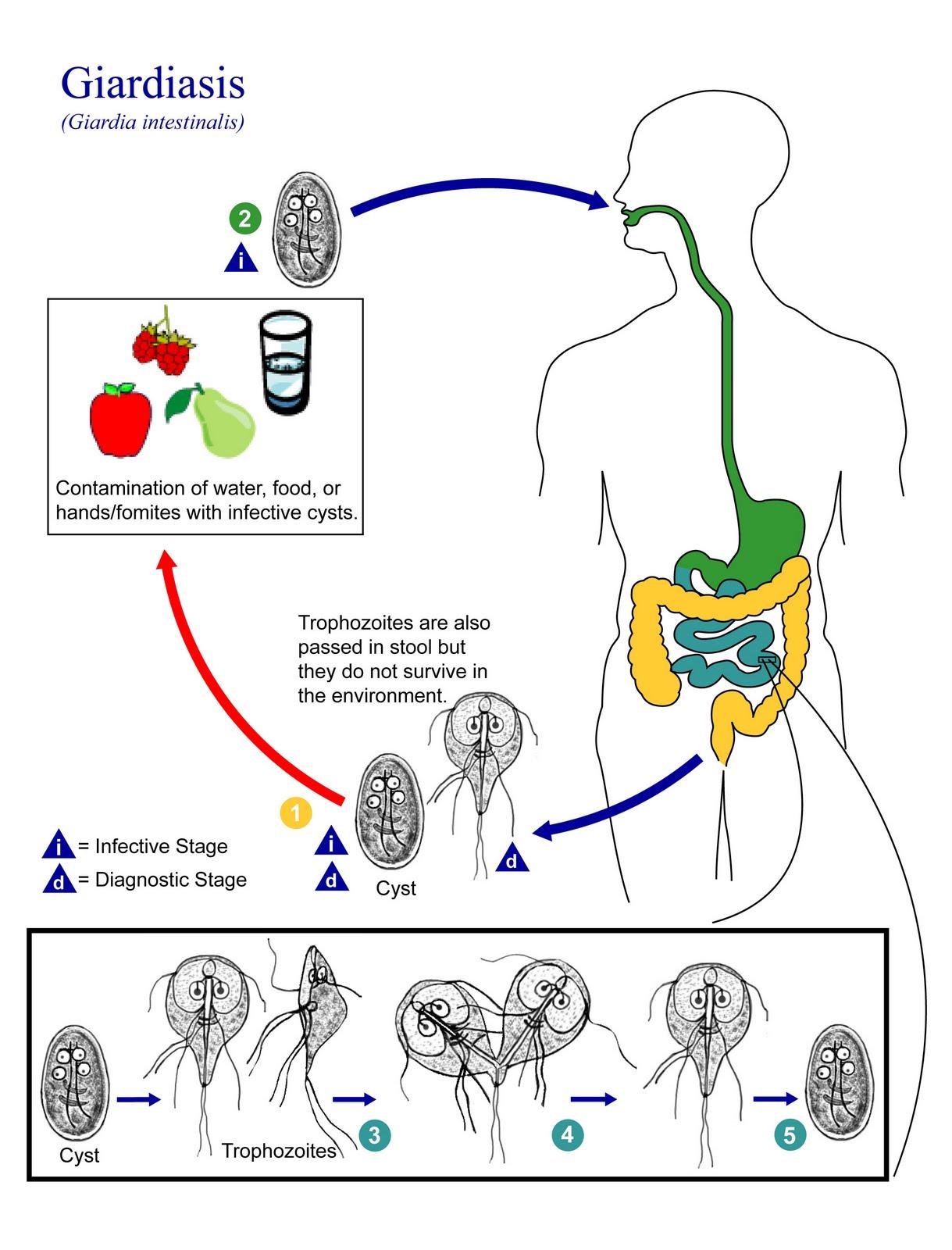 giardia parasite infection symptoms)