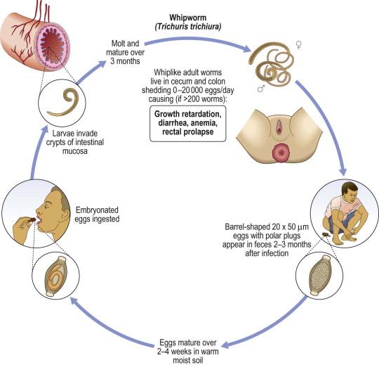 trichocephalosis geohelminth)