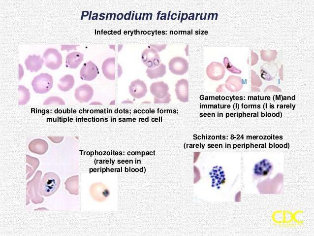 pinworm bél malária plazmodium
