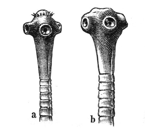 emberi körféreg laposféreg aschelminthes kép