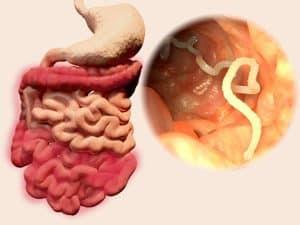 parazita tabletta az emberekben vélemények