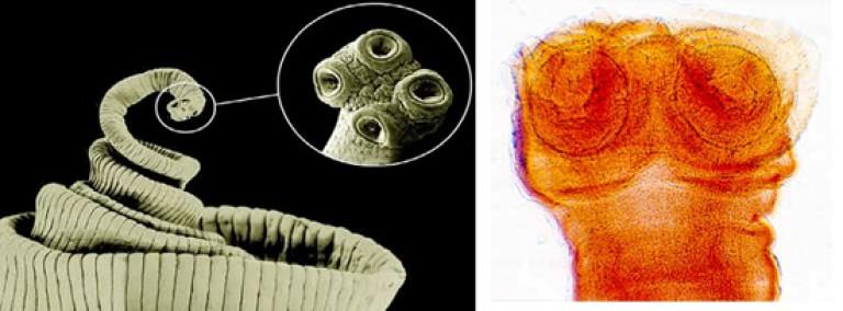 parazitá tabletta paraziták gyomorkezelésben