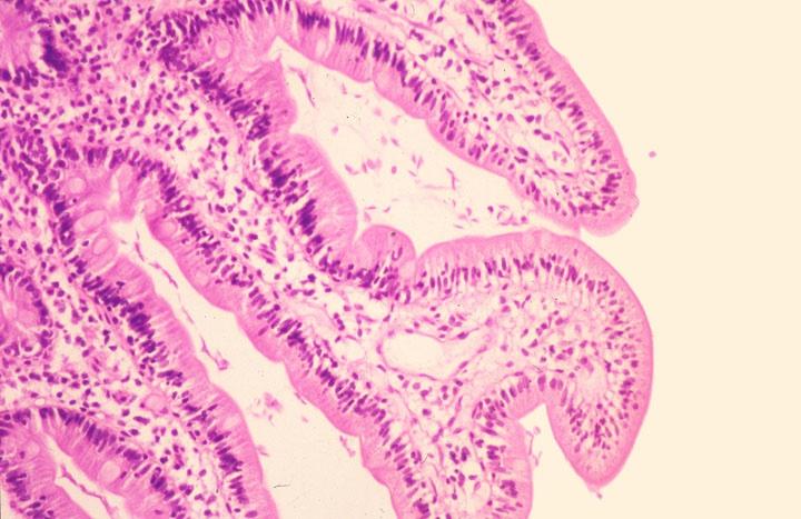giardiasis duodenum pathology outlines