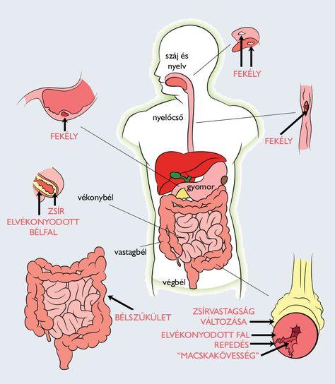 emberi nekatorózis tünetek)