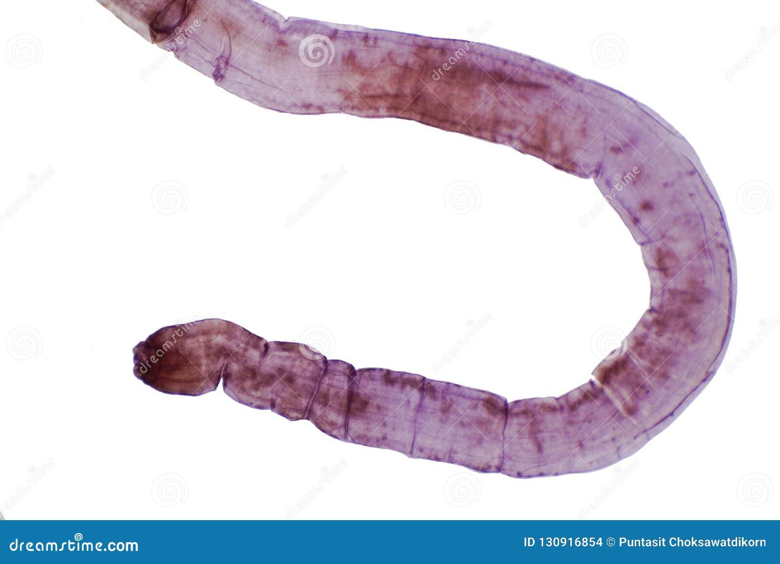 Szarvasmarha szalagféreg kezelési rendje