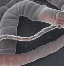 speciális szénhidrát diéta paraziták