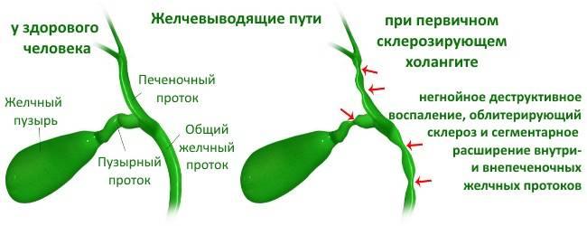 az epevezeték aszcariasis)