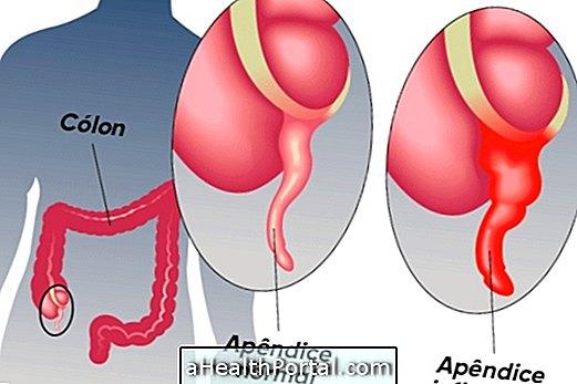 pinworms, hány él az emberi testben)
