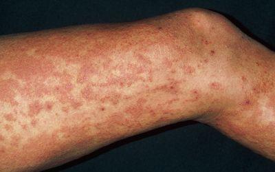 Túlélés // Téma megtekintése - Giardia Lamblia Disease Caused By Virus Chickenpox