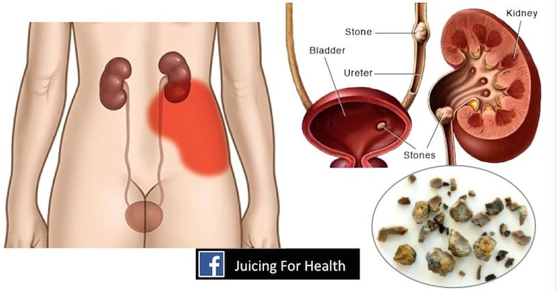 detox után colon hidroterápia)