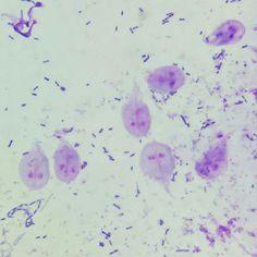giardia cysts cytology)