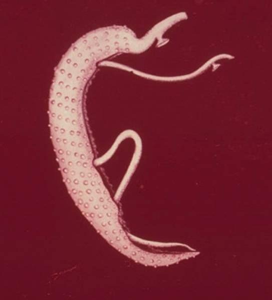Férgek bika szalagféreg kezelés ,gyermekek giardiasis kezelésének előrejelzése