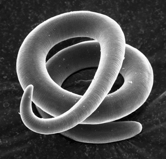 Szigorított disznótorok - A trichinella nevű parazita a nyers húsban jelent kockázatot