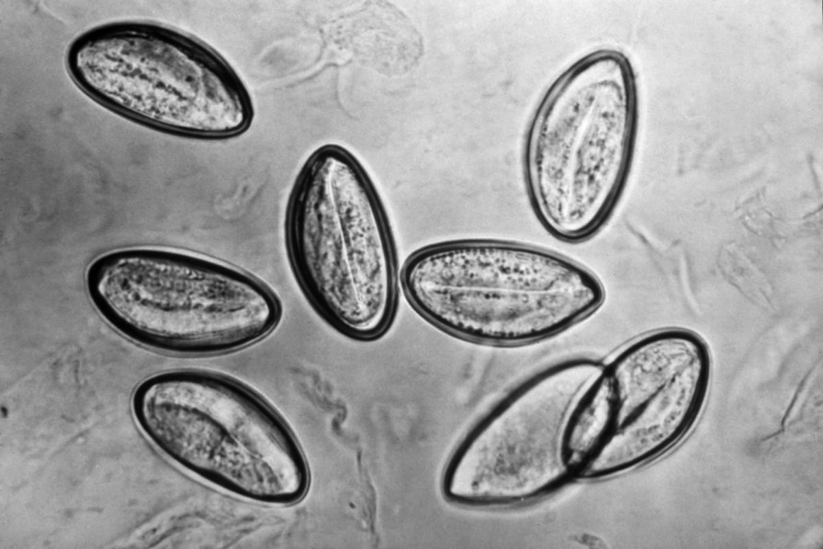 Enterobiasis a Tulában, Enterobiasis Tulában. Parazita kezelése Tulában