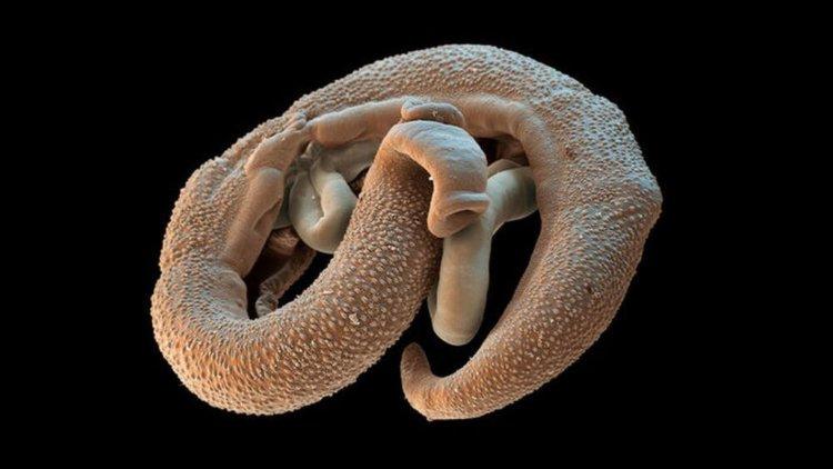 Paraziták típusai az emberekben képek Paraziták a vizeletben az emberekben