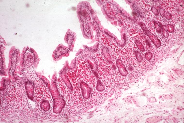 Giardiasis jelentese. Giardia-fertőzés (giardiasis)
