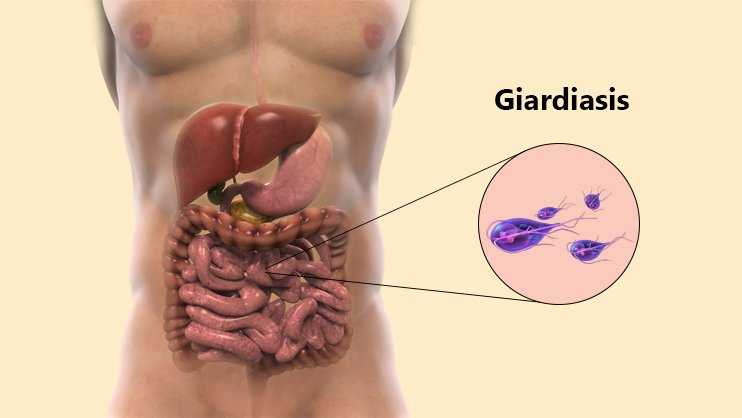 giardia if left untreated)