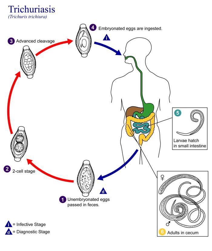 deworming opisthorchiasis
