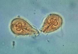 giardia cysts in human stool)