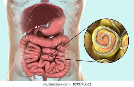 helminth és pinworm kezelés