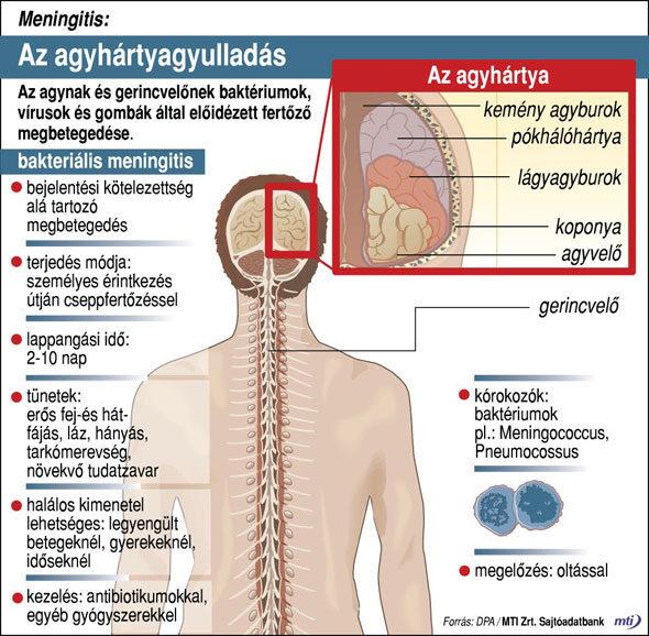 Agyhártyagyulladás (meningitis)