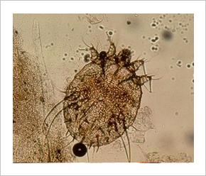 mikroszkopikus emberi bőr paraziták