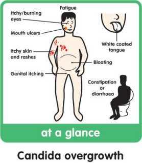 paraziták tünetei a gi traktusban