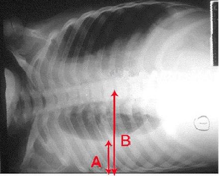 a strongyloidosis fertőző vagy nem)