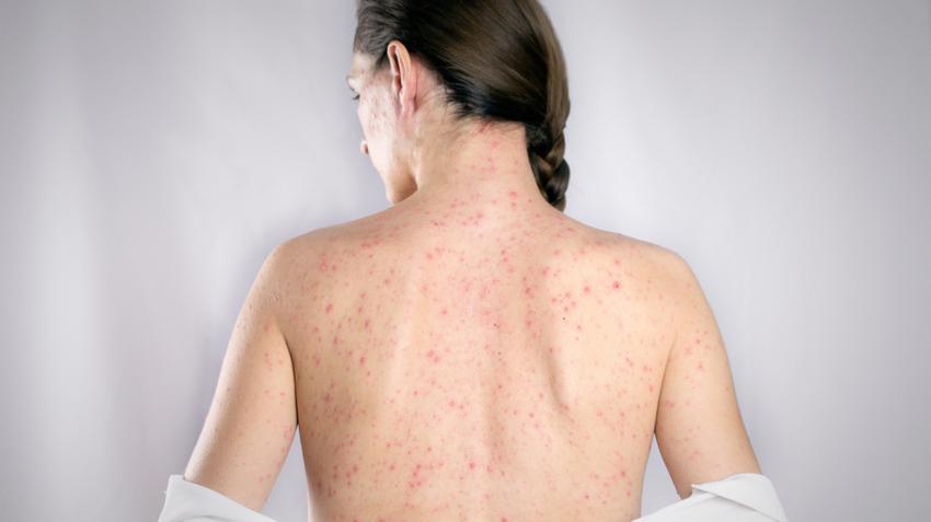 enterobiosis mik ezek a tünetek)