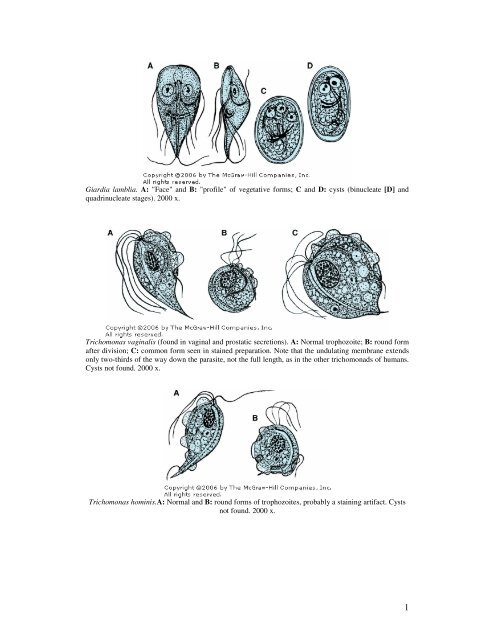 giardiasis relapse