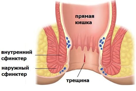 jellemzik az aszcariasis bélfázisát)