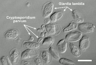 cryptosporidium and giardia