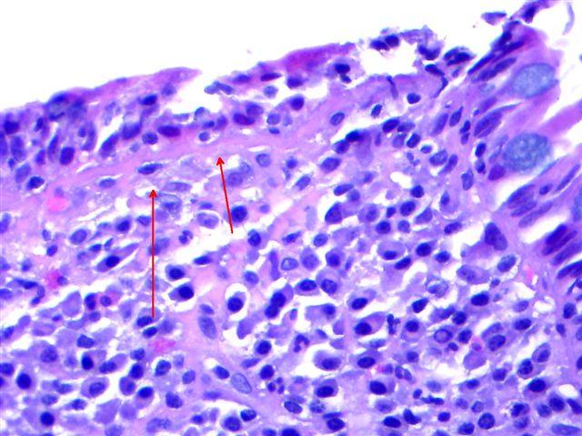 giardiasis duodenum pathology outlines)