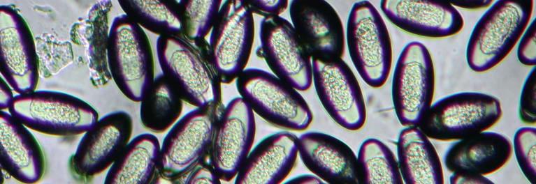 az élet pinworms