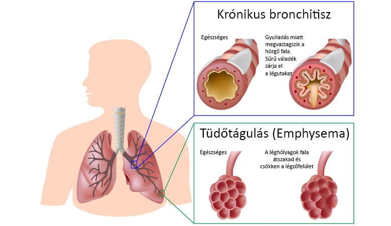 OTSZ Online - A fémek toxikológiája és a krónikus nem fertőző betegségek