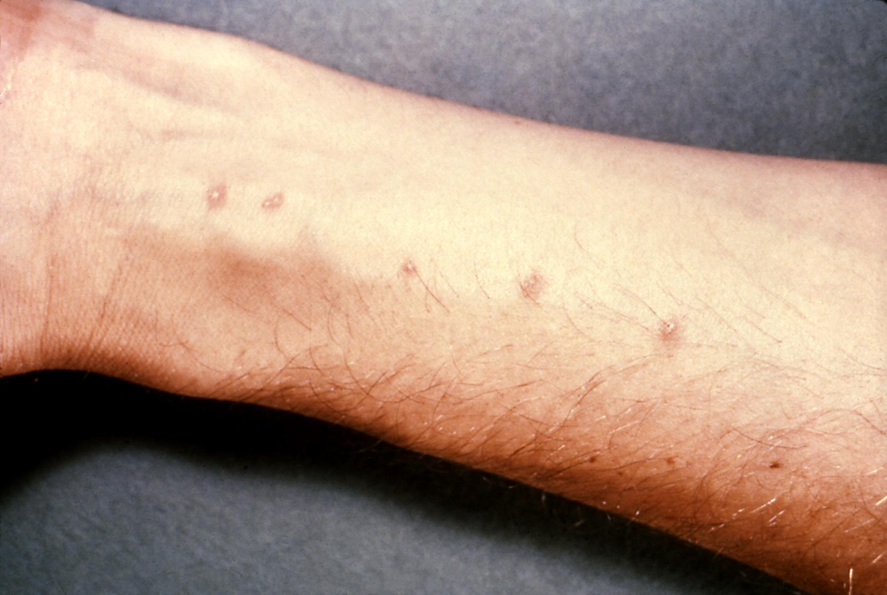 giardia symptoms rash
