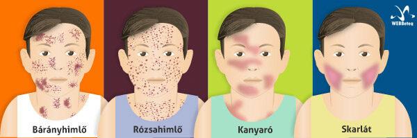 gyermekek kezelésére alkalmazott helmintikus fertőzés tünetei