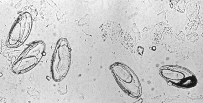 pinworm életciklusa