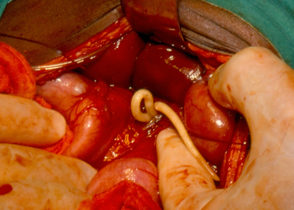opisthorchiasis helminthiasis)
