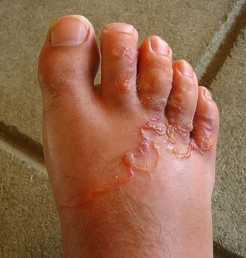 pinworm bőrkiütés