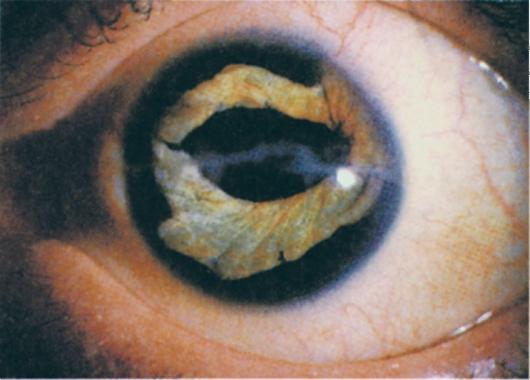 az emberi szem helmintjai)