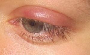 az emberi szem helmintjai