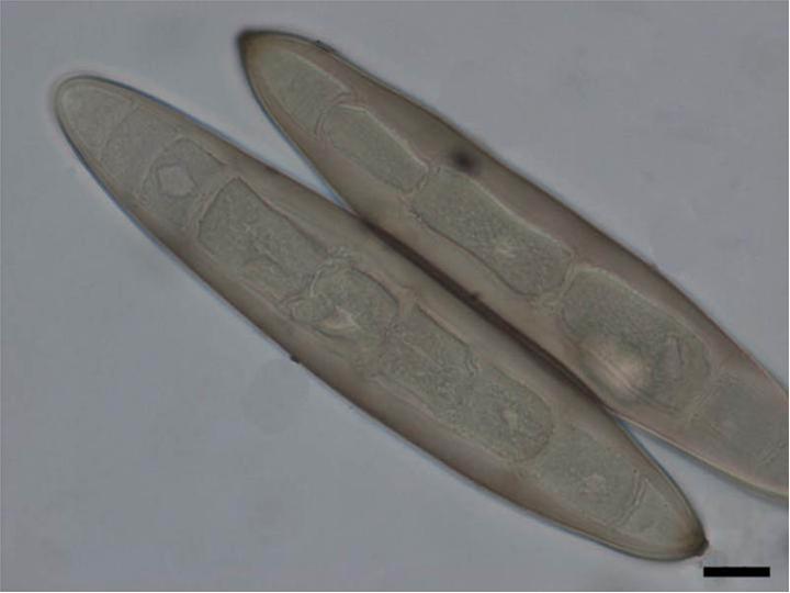 A kukorica gombás betegségei és ellenük való védekezés – A kukorica szár- és levélbetegségei (2/2.)