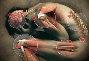 kör alakú férgek tünetei és kezelése)