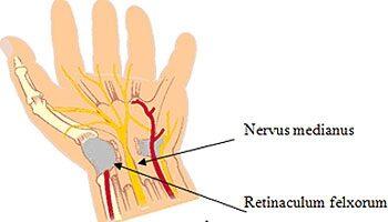 Sertésférgek tünetei és kezelése féreg
