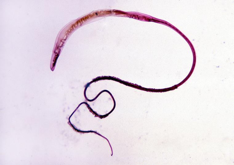 trichocephalosis mi az