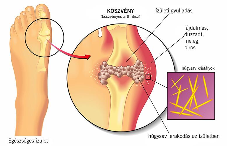 giardiasis ízületi fájdalom)