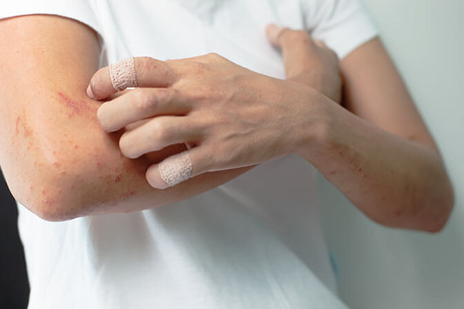 allergia a parazitákkal szemben
